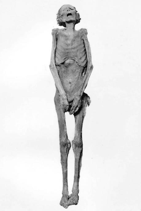 Mumija koja vrišti