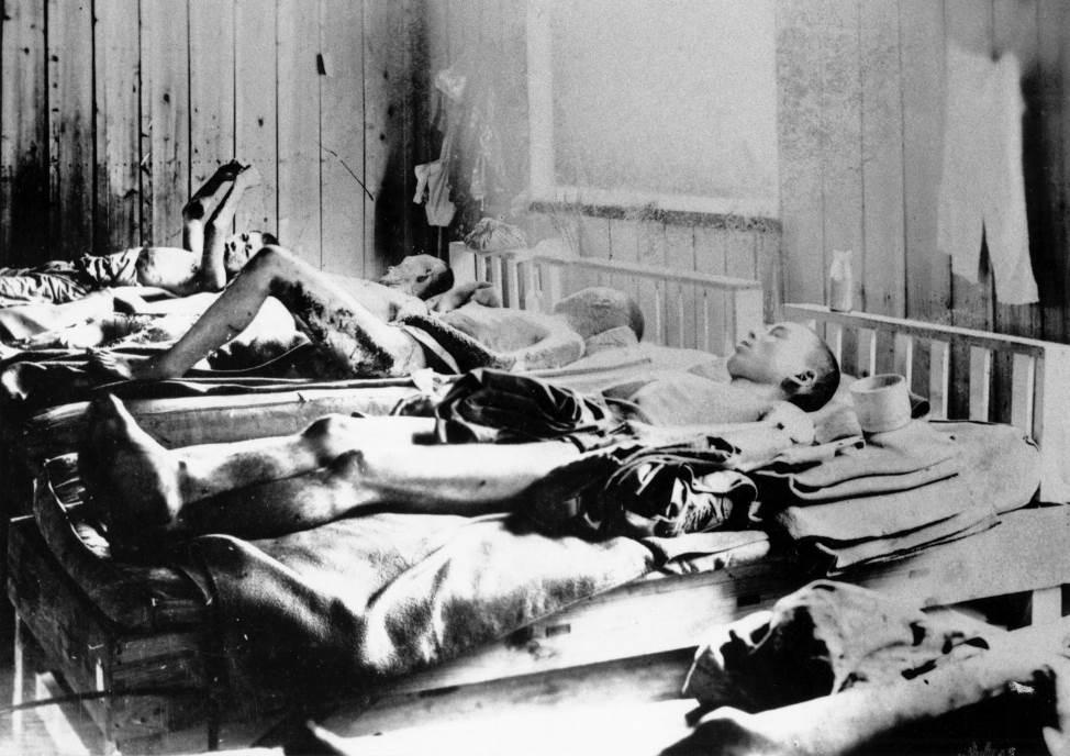 Preživeli nakon eksplozije atomske bombe u Hirošimi.