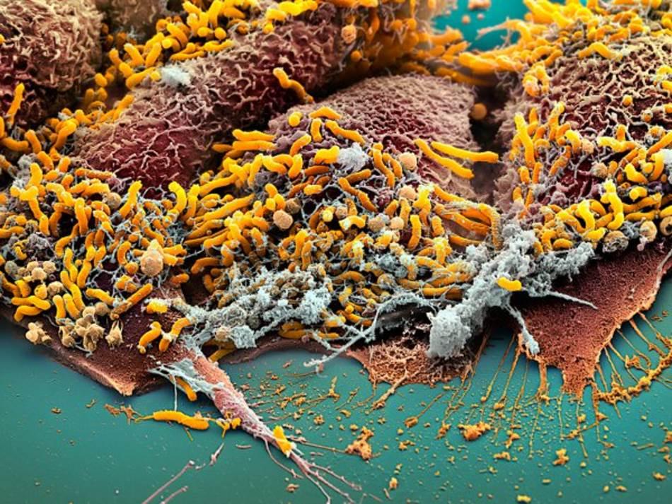HELIKOBAKTERIJE Helicobacter pylori (žuto), uobičajena bakterija koja se nalazi u tkivu stomaka, može da poveća rizik od kancera (braon ćelije). Vremenom, ove bakterije ipak mogu da smanje stomačnu kiselinu i refluks, što pomaže da se rak odbije. Ovaj mikrob, takođe, pomaže u zaštiti od alergija i astme. Neki naučnici pretpostavljaju da dramatično povećanje ovih stanja može da se pripiše smanjenom prisustvo helikobakterija, što je delom posledica velikih doza antibiotika uzimanih u detinjstvu.