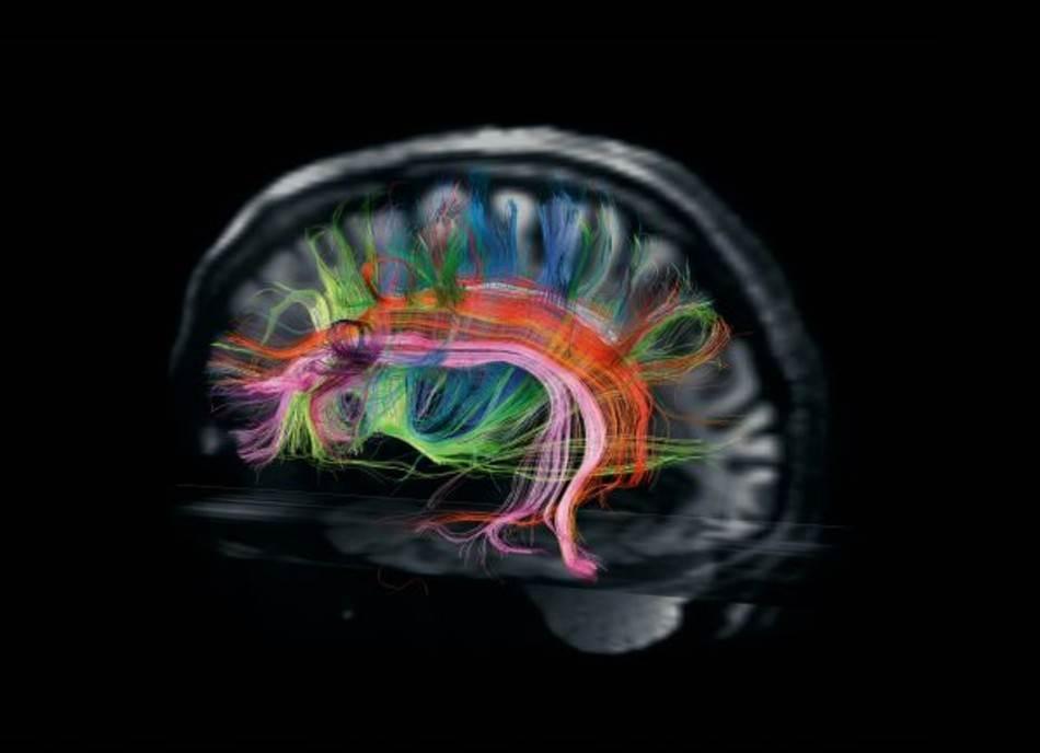 Brojni regioni mozga povezani su sa oko 160.000 kilometara vlakana zvanih bela masa, što je dovoljno da se Zemlja opaše četiri puta. Slike kao što je ova, napravljena u Martinosovom centru, po prvi put otkrivaju specifične putanje na kojima se zasnivaju kognitivne funkcije. Ružičasti i narandžasti snopovi, na primer, prenose signale važne za jezik.