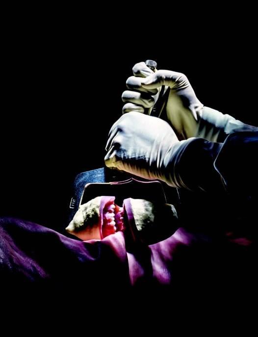 Problem sa zubima Stomatološki forenzičar svedočio je da su šanse jedan prema milion da tragovi ujeda na ruci žrtvi ne pripadaju Stivenu Marku Čejniju (gore, na krevetu), koji je osuđen 1987. godine. Ali ima malo naučnih dokaza koji opravdavaju pouzdanost te forenzičke metode. U jednom istraživanju 30 zubara je analiziralo veštački napravljene tragove ujeda na koži svinje kao zameni za ljudsku kožu (levo). Čak su i iskusni stručnjaci grešili. Čejni je oslobođen prošlog oktobra nakon što je svedočenje o tragovima ujeda odbačeno.