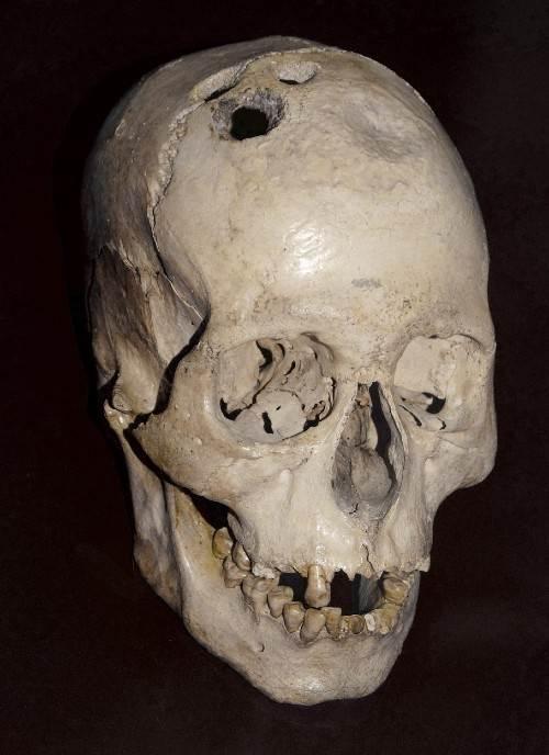Lobanja sa dokazima trepanacije, Jerihon, 2000. p.n.e.